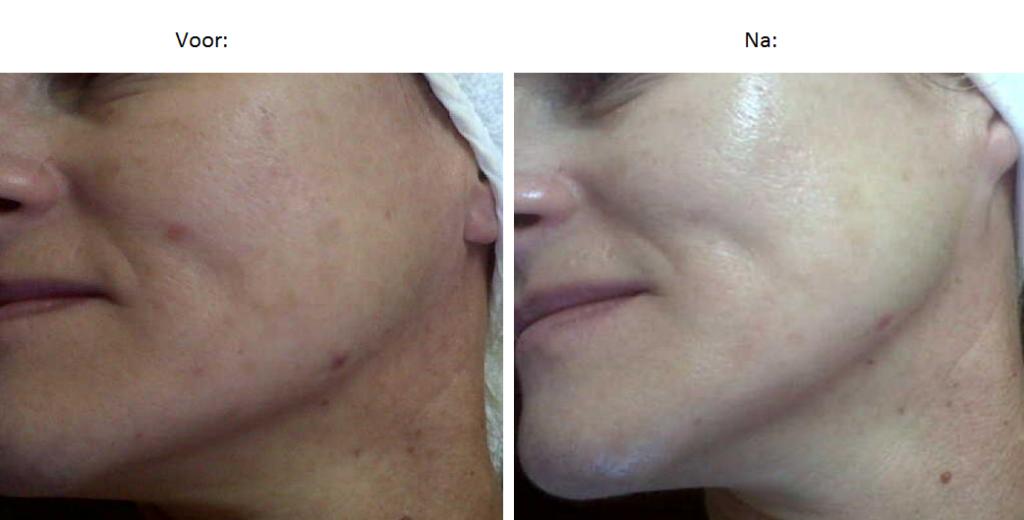 peeling, schoonheidssalon, almelo, gezichtsbehandeling