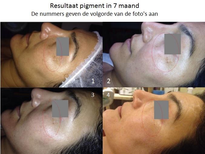 pigment, zwangerschapsmasker, vlekken, onregelmatig, huid, ouderdomsvlek