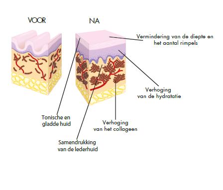 mavex, forever, nederland, almelo, schoonheidssalon